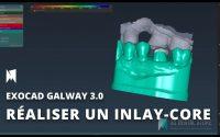 [EXOCAD] Tutoriel : comment créer des Inlay core avec scanpost sur Galway 3.0 de 3D Dental Store